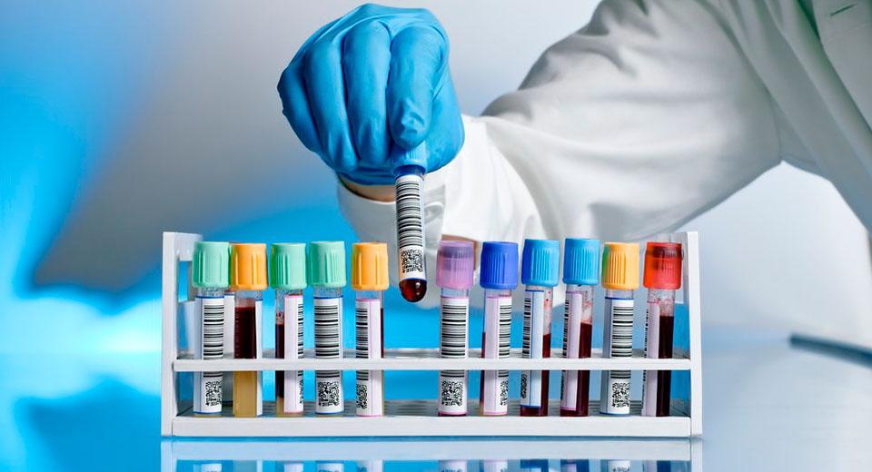 анализы на аллергию ижевск
